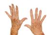 lentigo-dermatologia