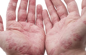 Chino el ungüento para la psoriasis